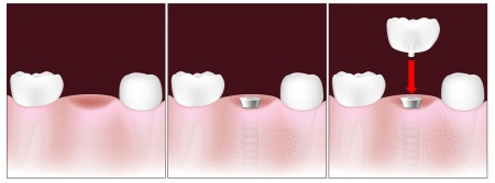 dental implants columbia mo
