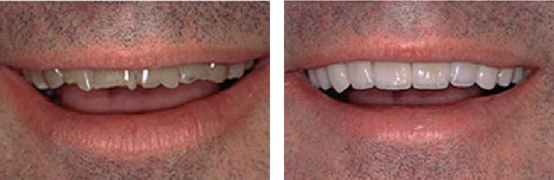 Before and After: Porcelain Crowns