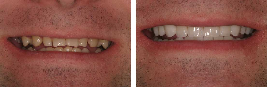Before and After: Porcelain Veneers